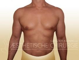 Lipo-Mann-Bauch-Flanken-Brust-12a-nachher