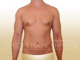 Lipo-Mann-Bauch-Flanken-Brust-12a-vorher