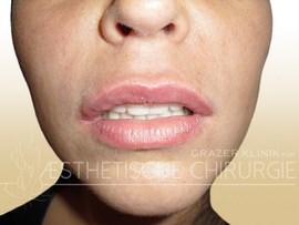 Lippen-1-nachher