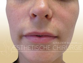 Lippen-1-vorher