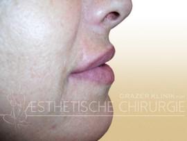 Lippen-3-nachher