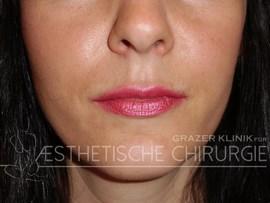Lippen-6-nachher