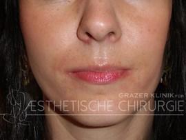 Lippen-6-vorher