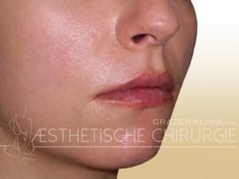 Lippen-8-nachher