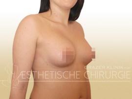 tuberoese_Brust_21b_nachher_Kopie_f