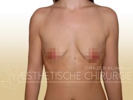 tuberoese_Brust_23_vorher_f
