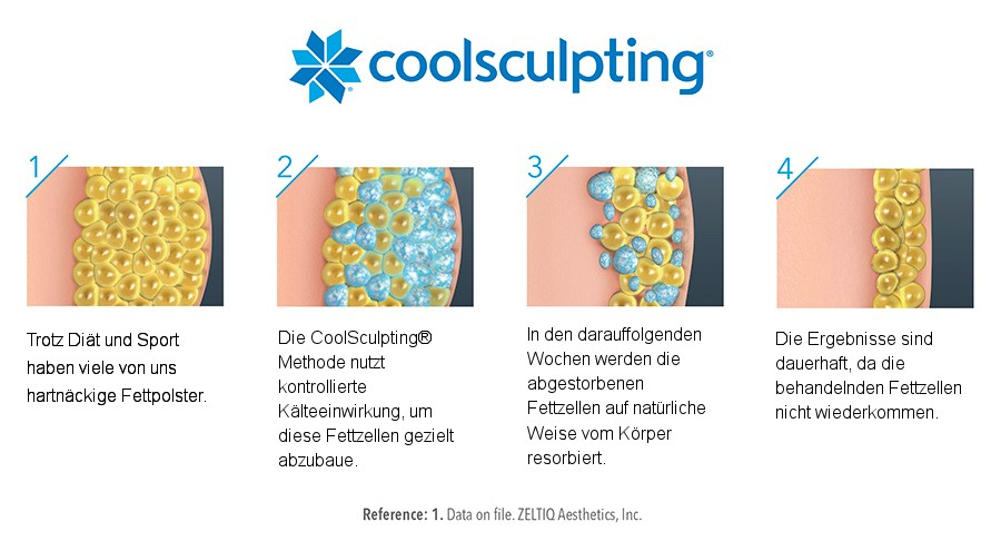 CoolSculpting® Behandlung