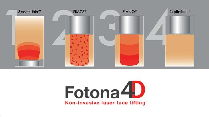4 Behandlungsschritte vom 4D Facelift