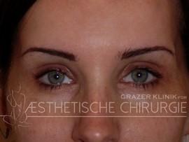 Augenbrauenlift nachher