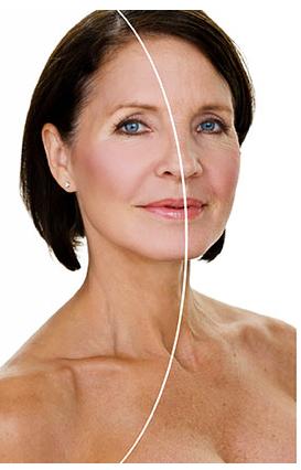 Hightech Behandlung mit der Lasertherapie gegen Falten