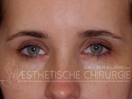 Augenbrauenlift vorher