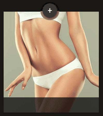 Bauchdeckenstraffung