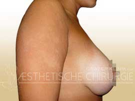 Bruststraffung-mit-Implantat-2-nachher