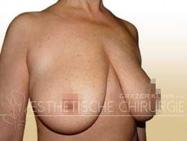 Bruststraffung vorher nachher