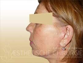 Face-15-nachher
