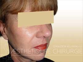 Facelift-nachher