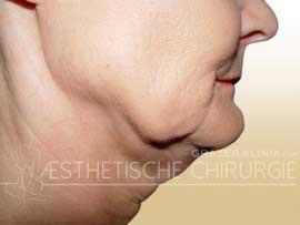 Face-3-Halslift-vorher-untere-Partie