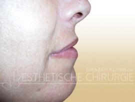 Lippenvergrößerung Vorher-Nachher-Bilder