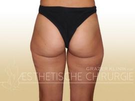 Brazilian Butt Lift Vorher-Nachher-Bilder