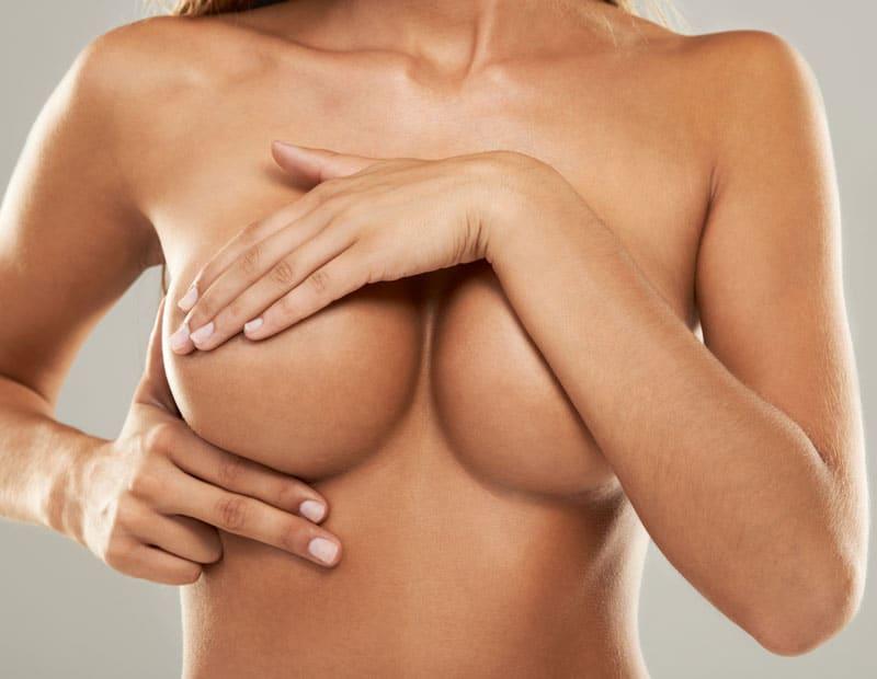 Kombination mit Bruststraffung – funktioniert das bei einer Brustvergrößerung von A auf B